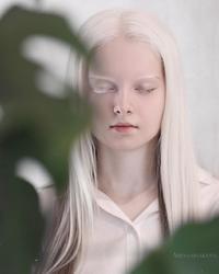 Красота чеченской девочки с альбинизмом и гетерохромией восхитила пользователей сети